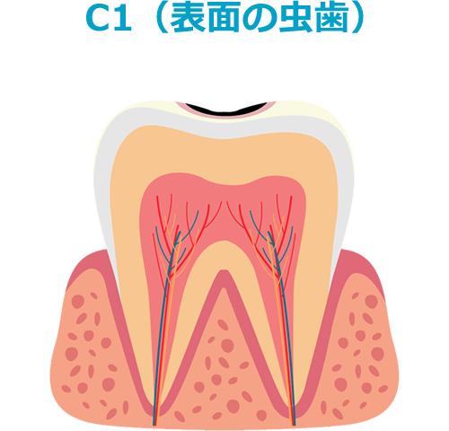 C1(表面の虫歯)