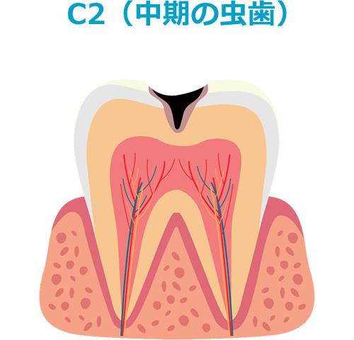 C2(中期の虫歯)
