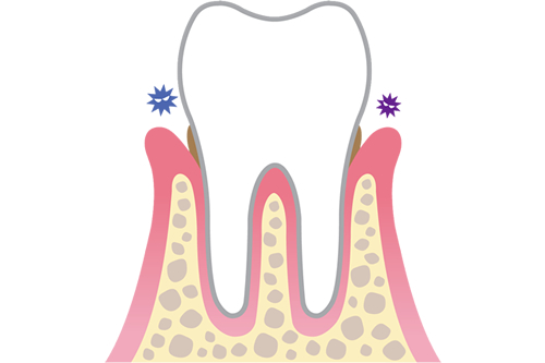 軽度の歯周炎