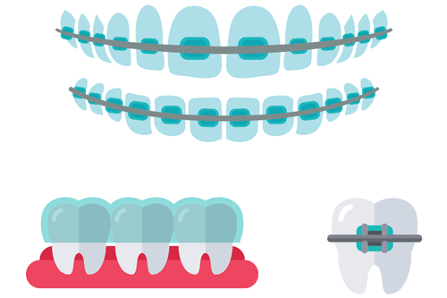 矯正歯科(おとなの矯正)
